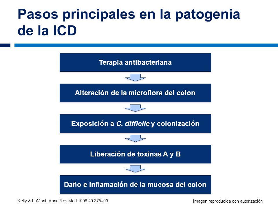 Pasos principales en la patogenia de la ICD