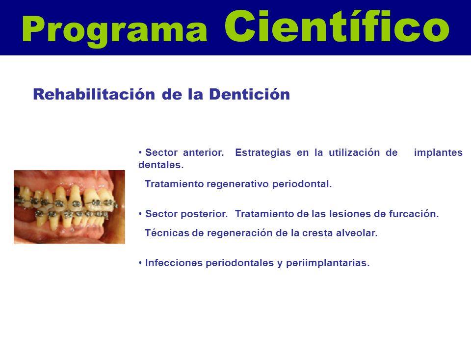 Programa Científico Rehabilitación de la Dentición