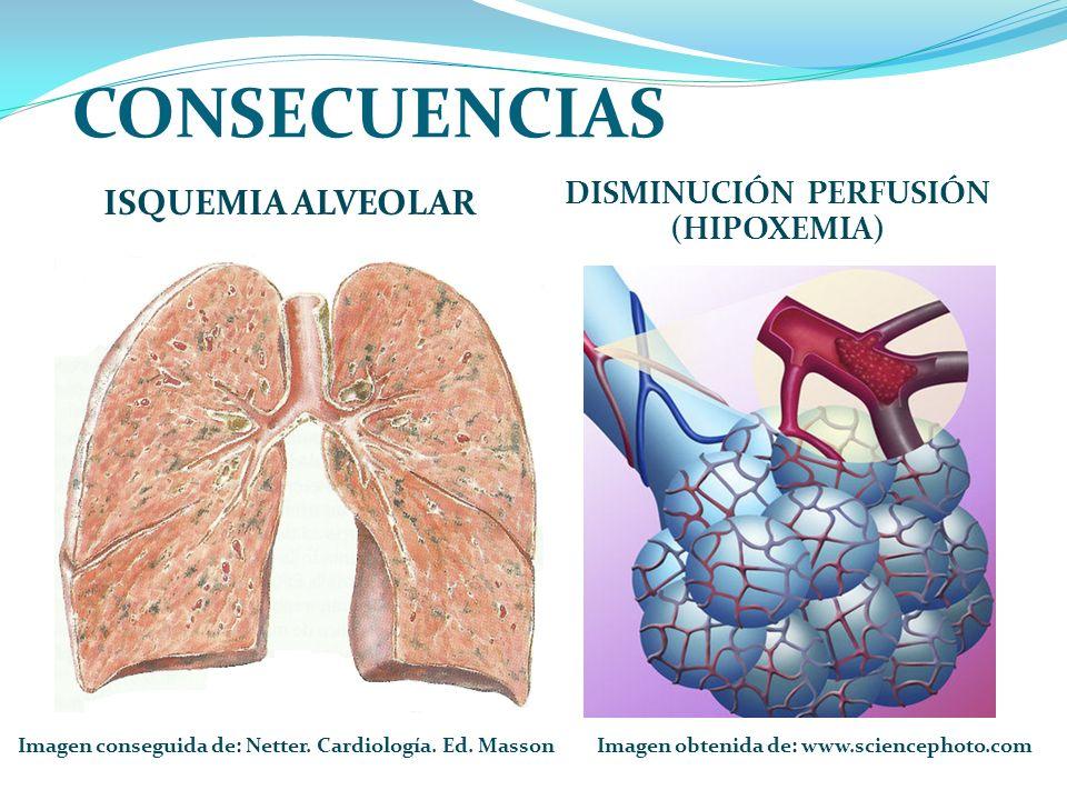 CONSECUENCIAS ISQUEMIA ALVEOLAR DISMINUCIÓN PERFUSIÓN (HIPOXEMIA)