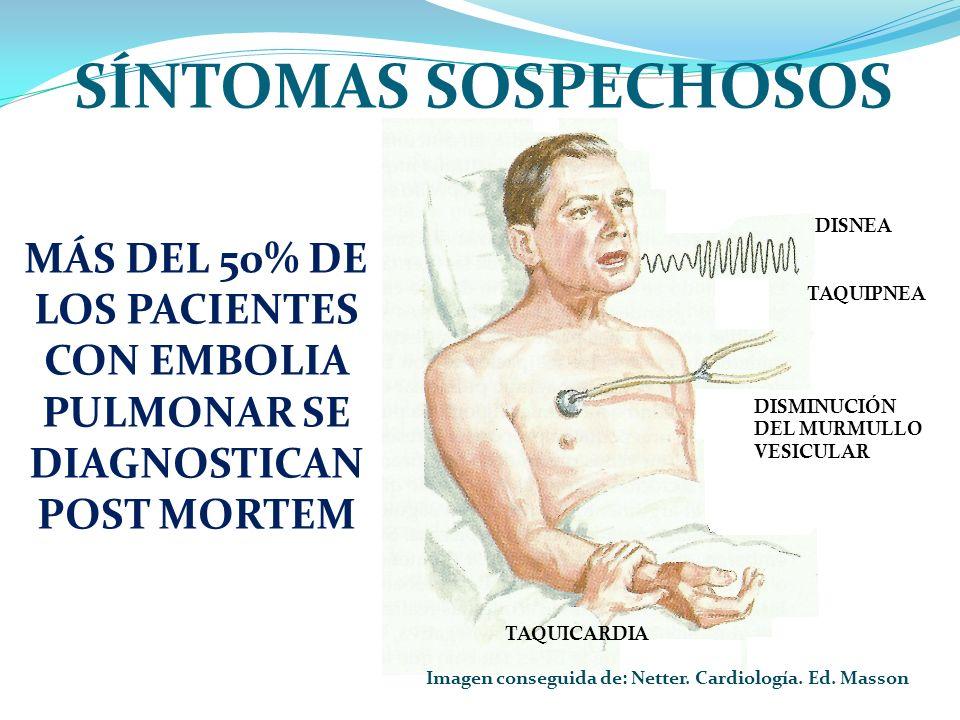 Imagen conseguida de: Netter. Cardiología. Ed. Masson