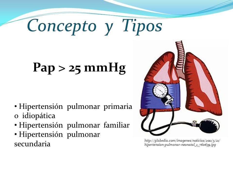 Concepto y Tipos Pap > 25 mmHg