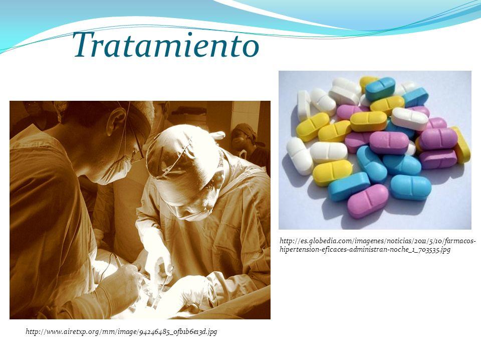 Tratamiento http://es.globedia.com/imagenes/noticias/2011/5/10/farmacos-hipertension-eficaces-administran-noche_1_703535.jpg.