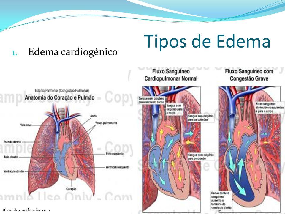 Tipos de Edema Edema cardiogénico © catalog.nucleusinc.com