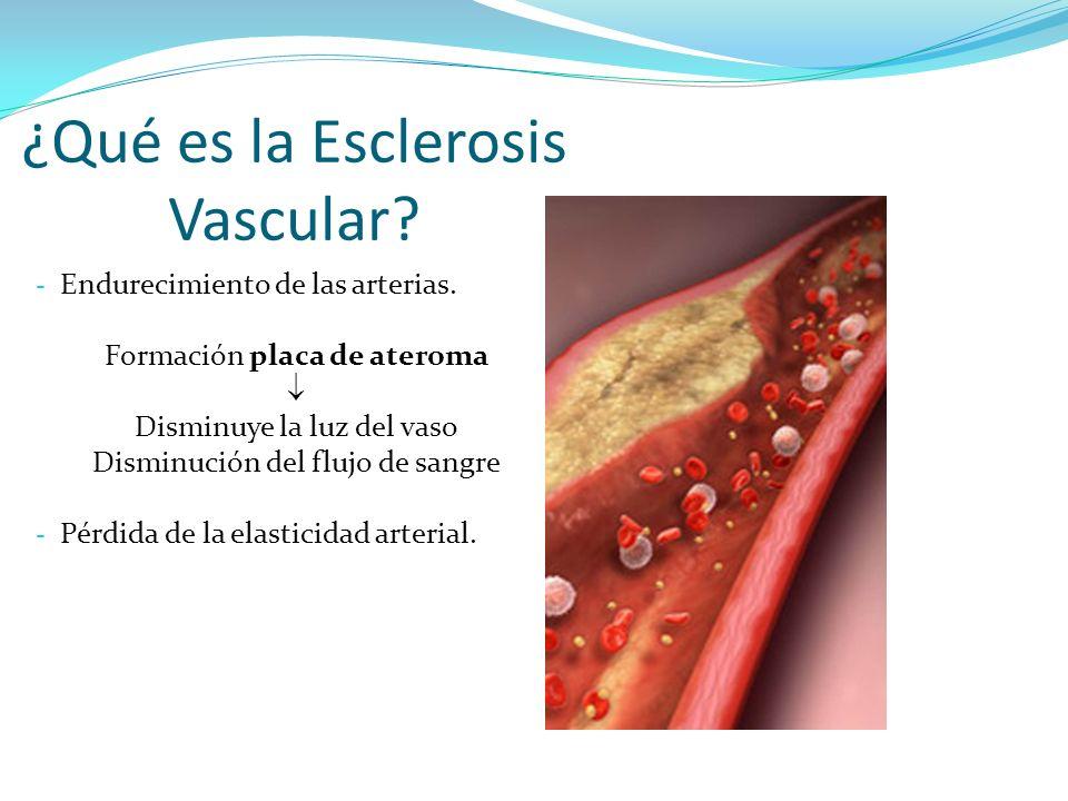 ¿Qué es la Esclerosis Vascular