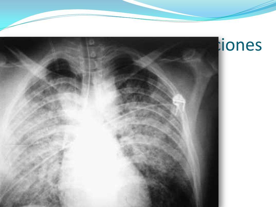 Manifestaciones Disnea Tos Estertores Radiografías características