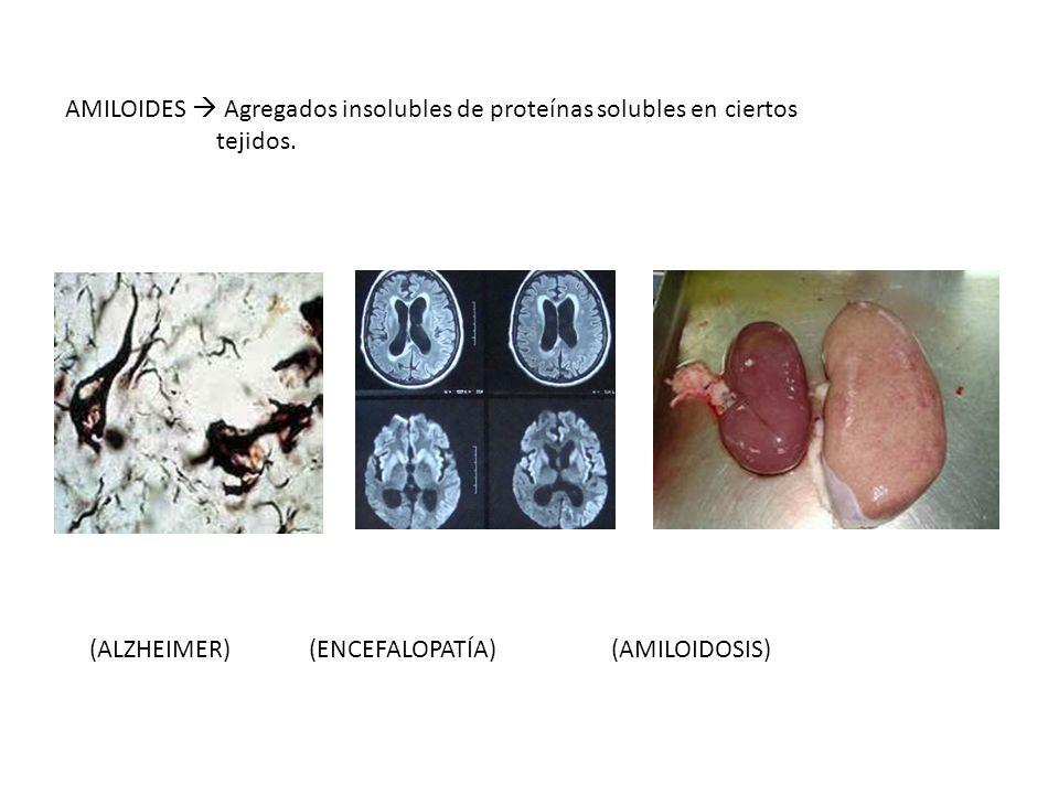 AMILOIDES  Agregados insolubles de proteínas solubles en ciertos