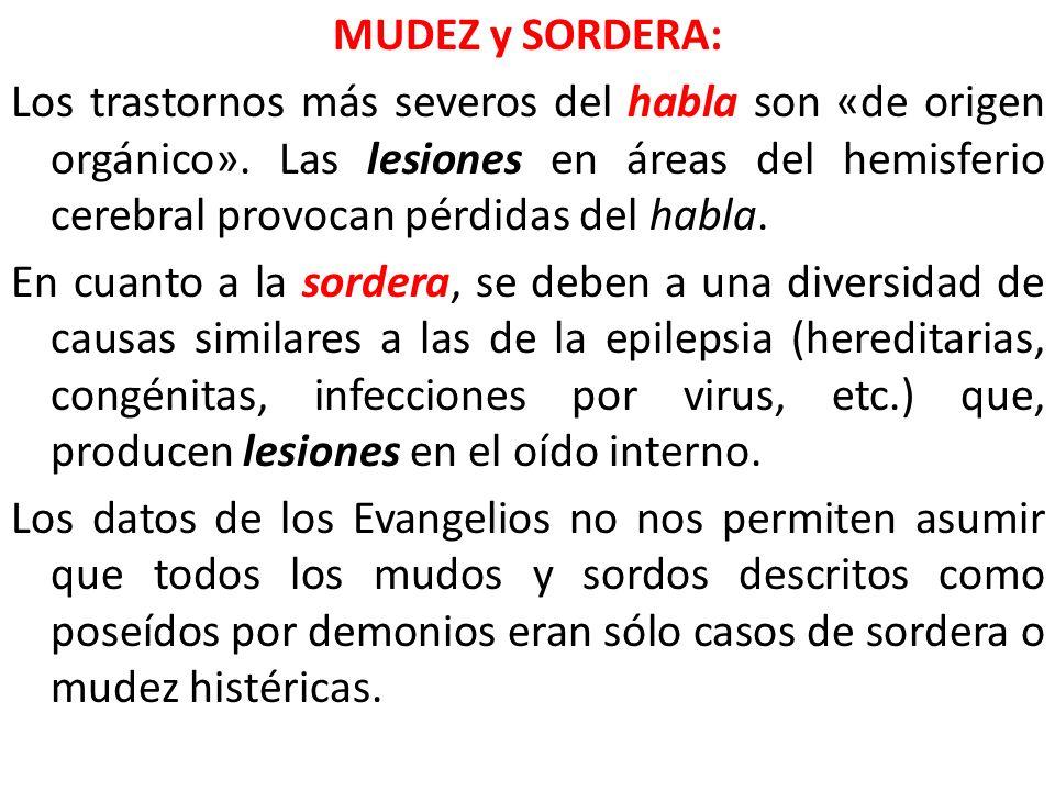 MUDEZ y SORDERA: