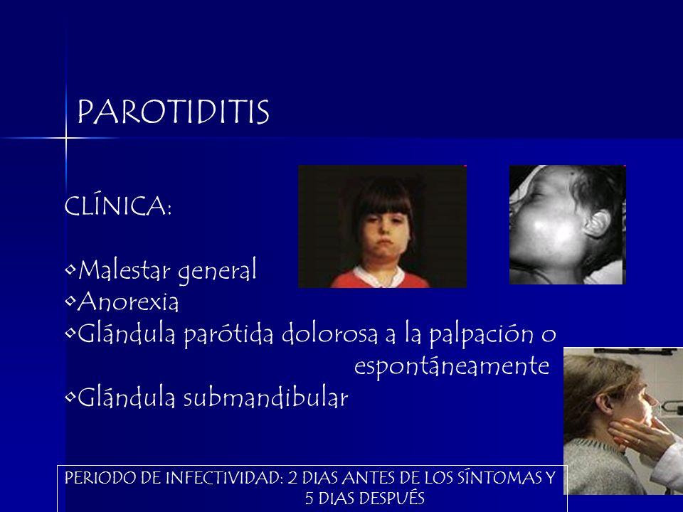PAROTIDITIS CLÍNICA: Malestar general Anorexia