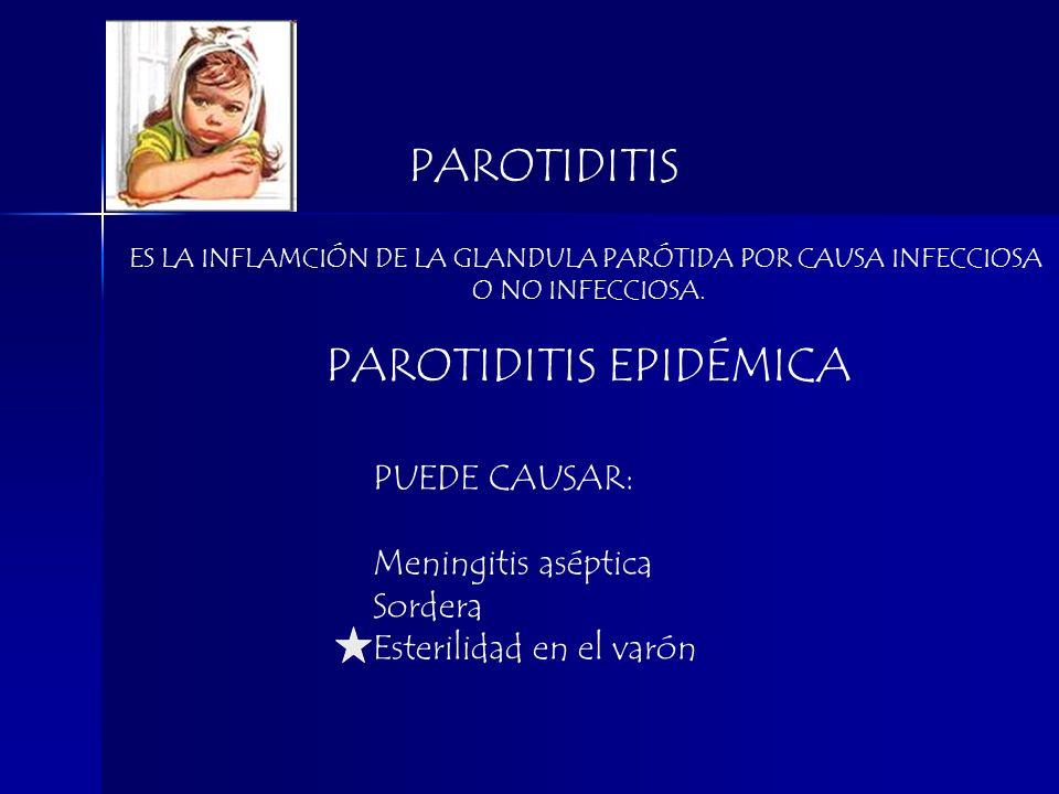 PAROTIDITIS EPIDÉMICA
