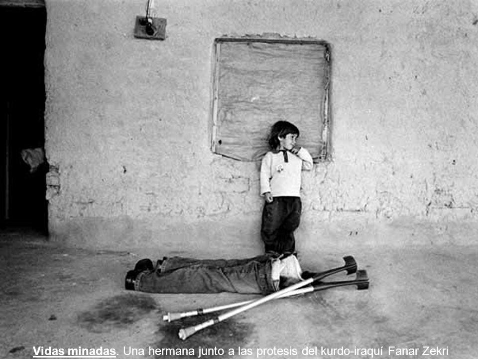 Vidas minadas. Una hermana junto a las protesis del kurdo-iraquí Fanar Zekri