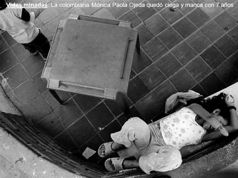 Vidas minadas. La colombiana Mónica Paola Ojeda quedó ciega y manca con 7 años