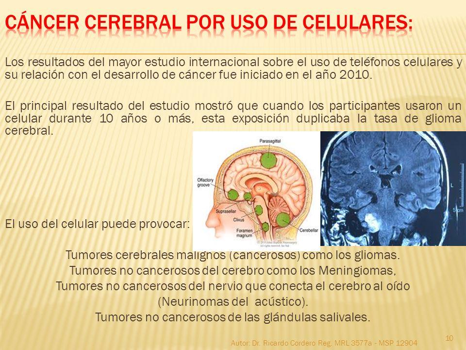 CÁNCER CEREBRAL POR USO DE CELULARES:
