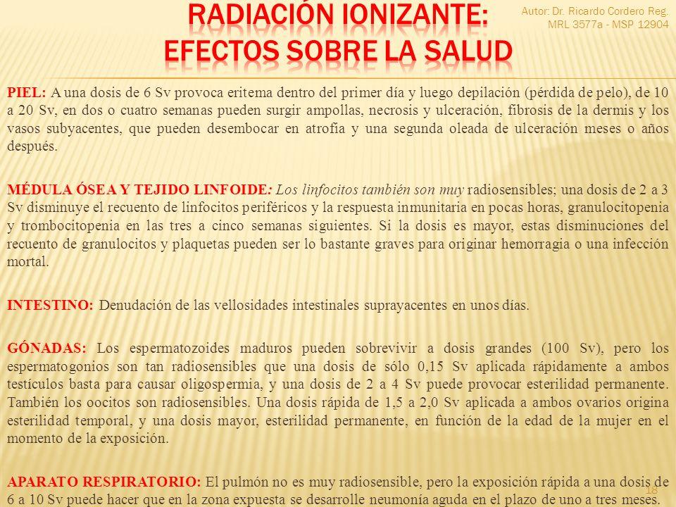 Radiación ionizante: Efectos sobre la salud