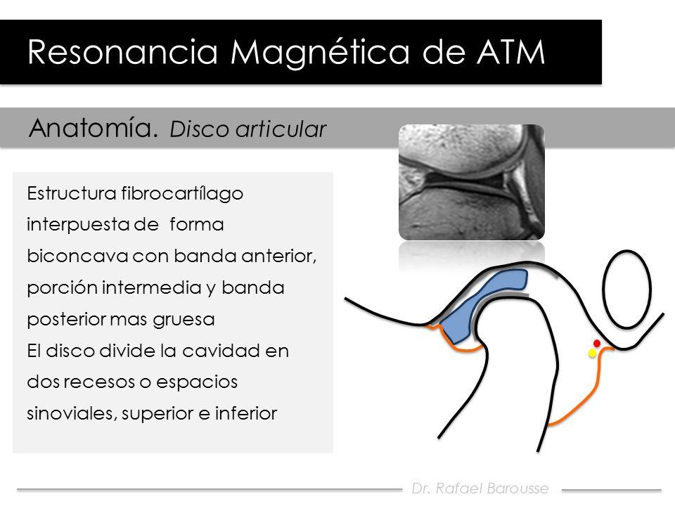 Moderno Anatomía De La Atm Modelo - Anatomía de Las Imágenesdel ...