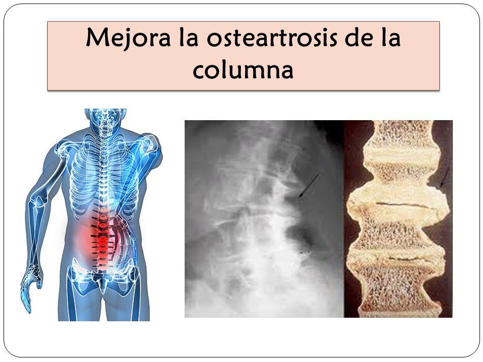 Mejora la osteartrosis de la columna