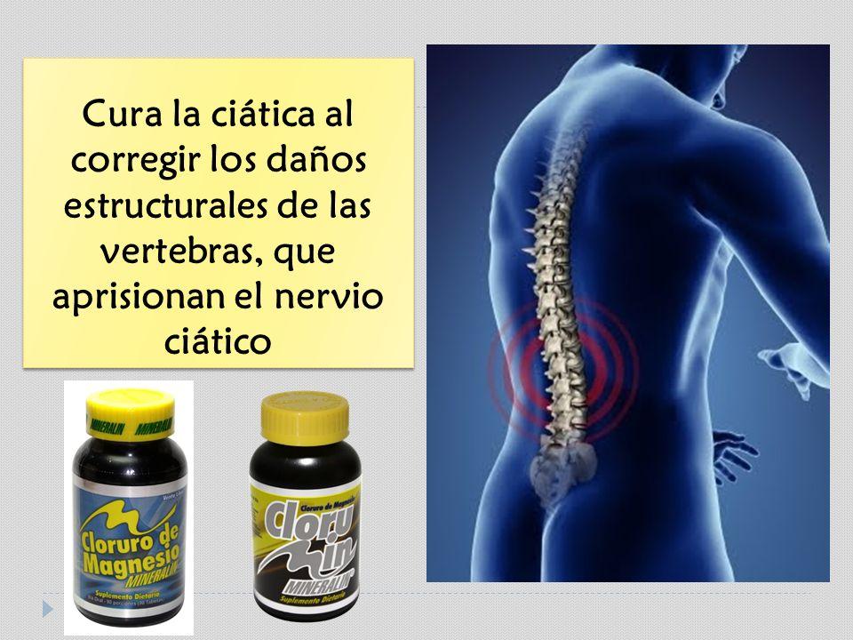 Cura la ciática al corregir los daños estructurales de las vertebras, que aprisionan el nervio ciático