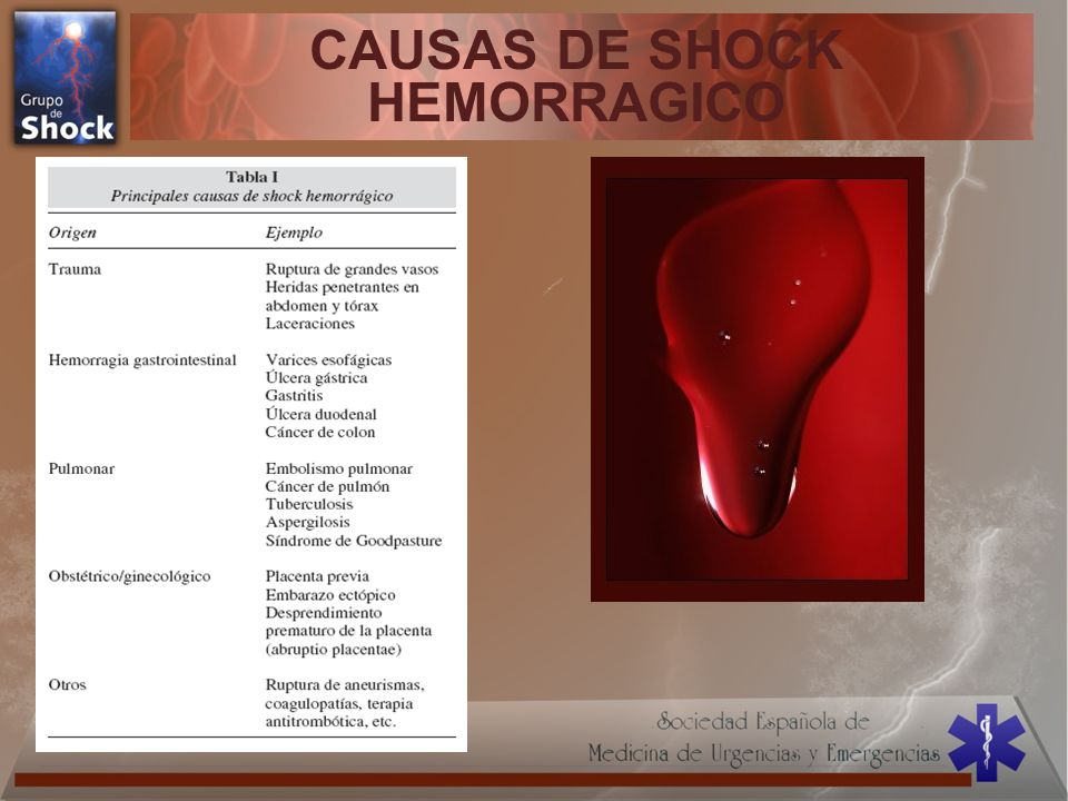 CAUSAS DE SHOCK HEMORRAGICO