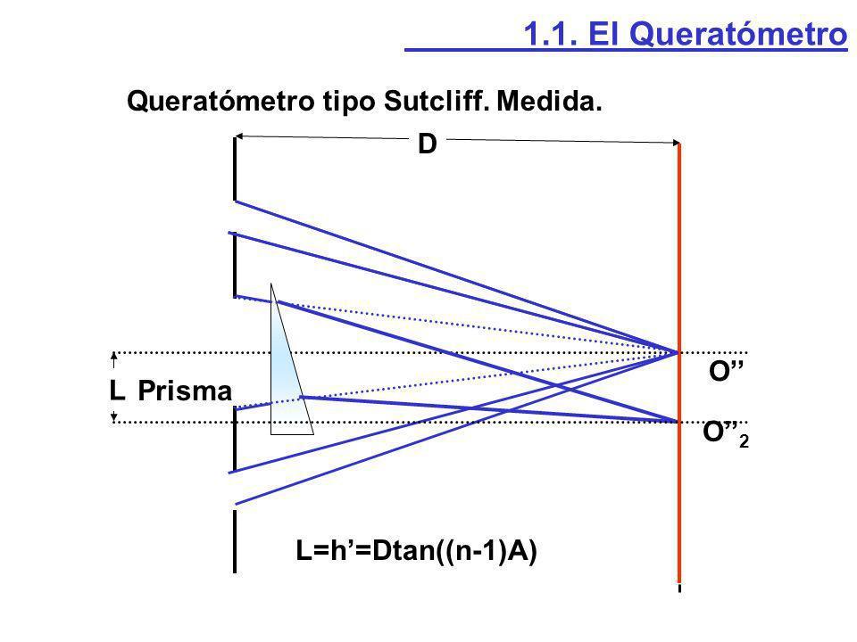 Queratómetro tipo Sutcliff. Medida.