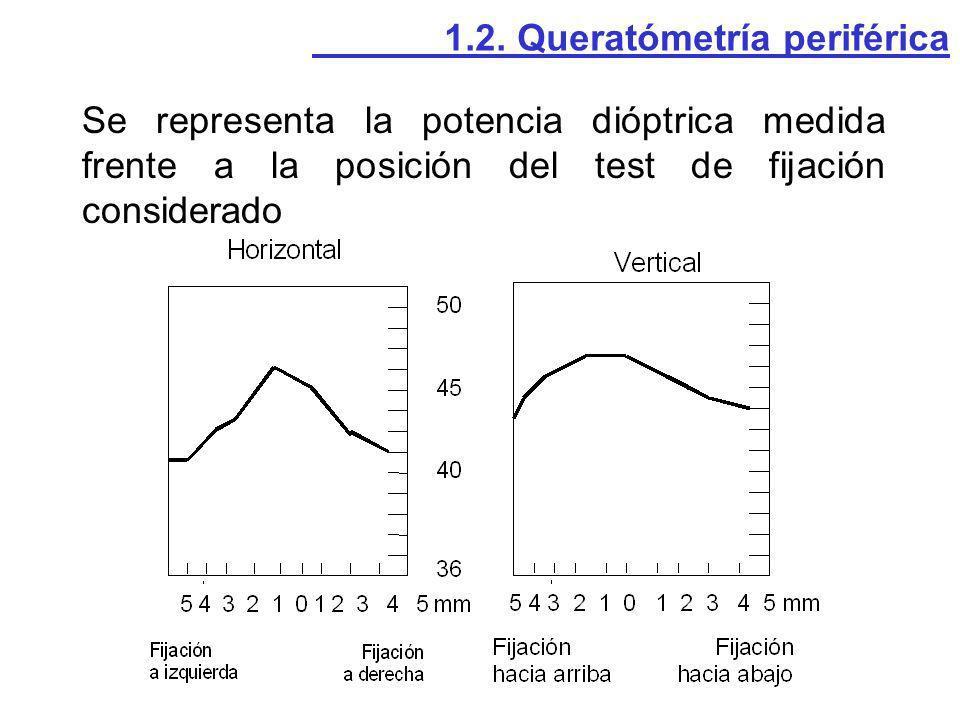 1.2. Queratómetría periférica