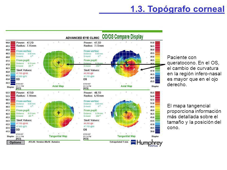 1.3. Topógrafo corneal Paciente con queratocono. En el OS, el cambio de curvatura en la región infero-nasal es mayor que en el ojo derecho.