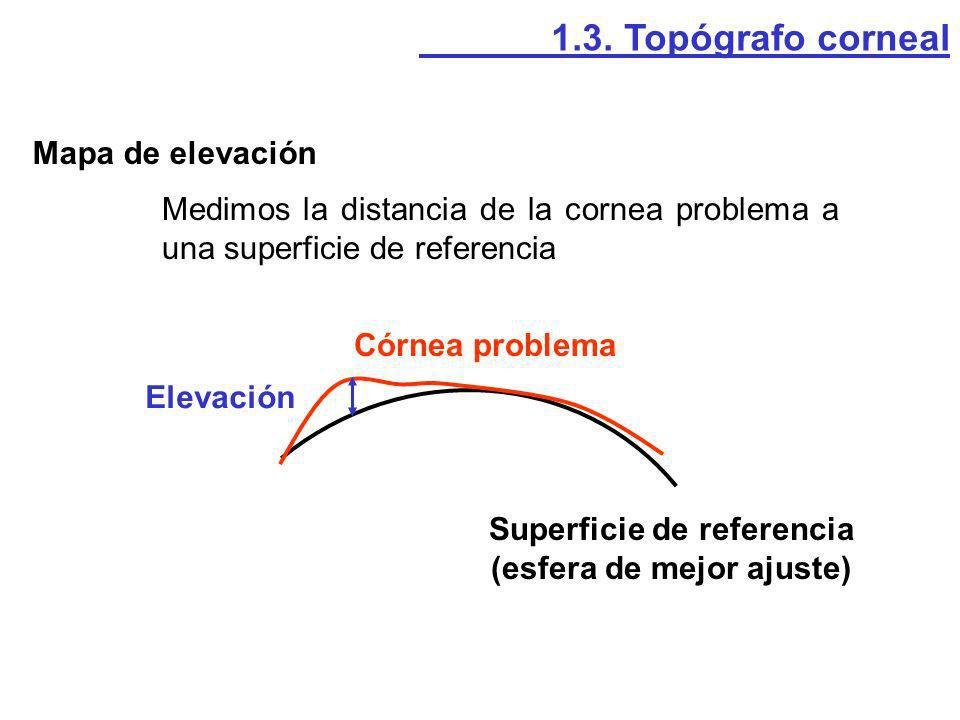 Superficie de referencia (esfera de mejor ajuste)