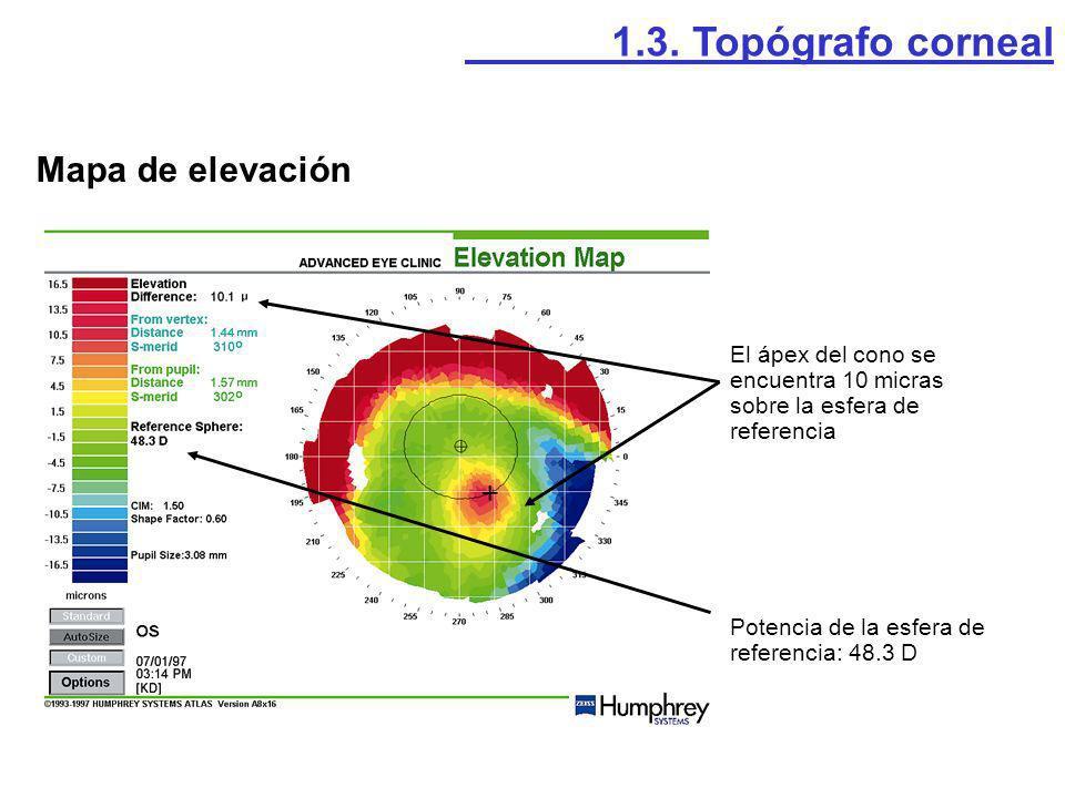 1.3. Topógrafo corneal Mapa de elevación