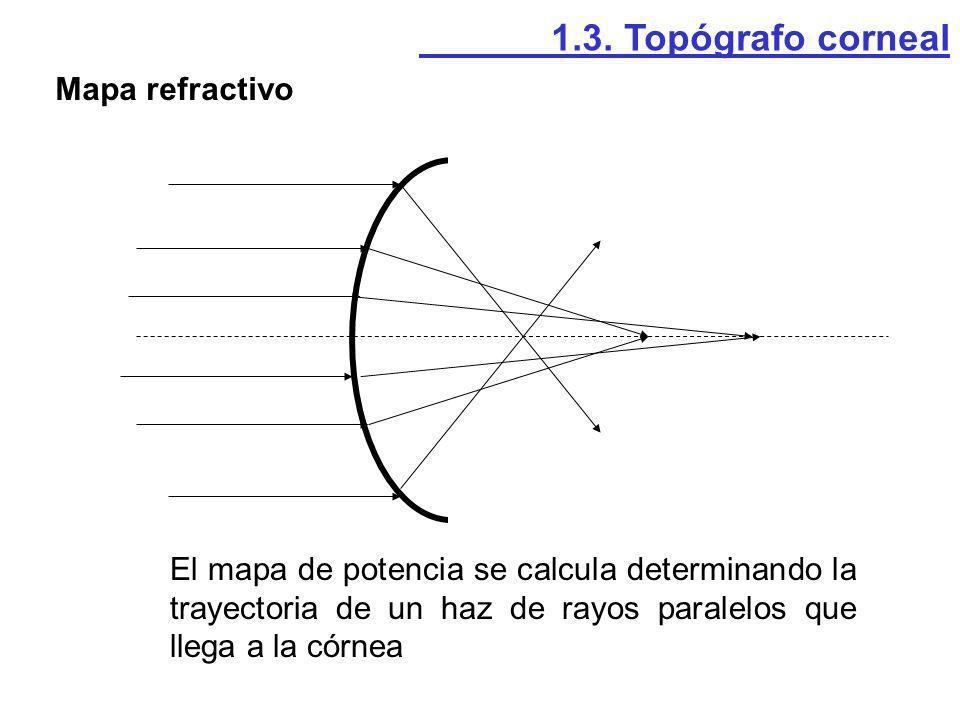 1.3. Topógrafo corneal Mapa refractivo.