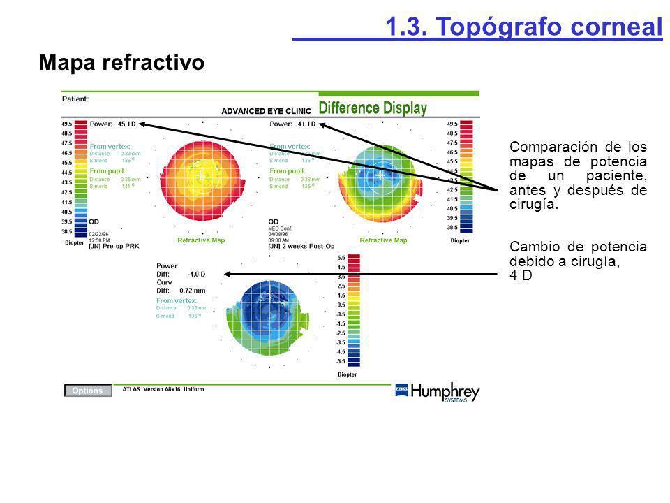 1.3. Topógrafo corneal Mapa refractivo