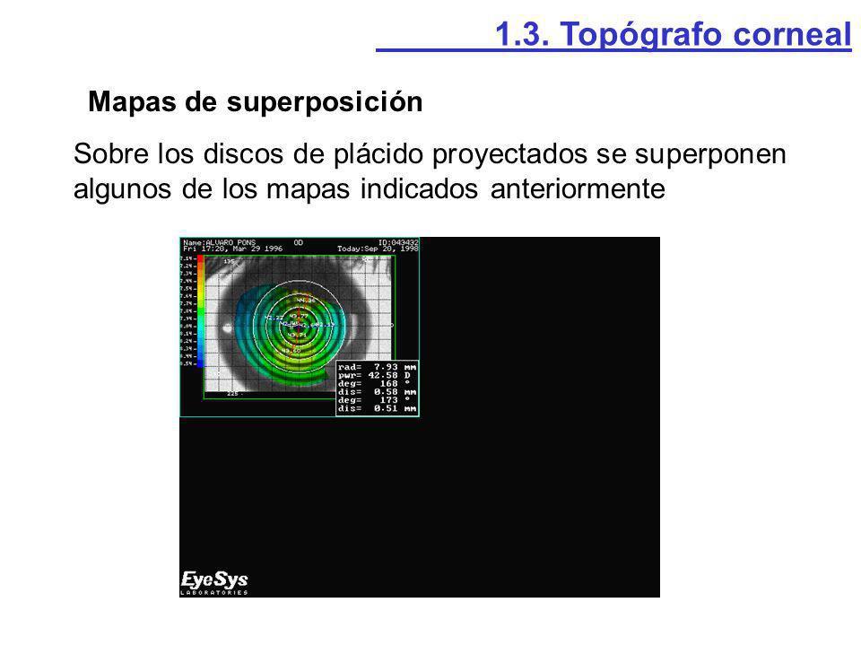 1.3. Topógrafo corneal Mapas de superposición.