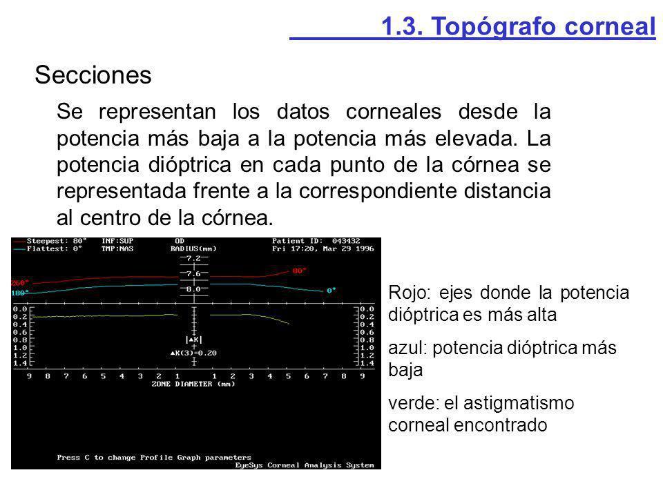 Secciones 1.3. Topógrafo corneal
