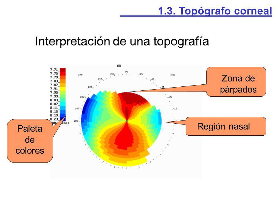 Interpretación de una topografía