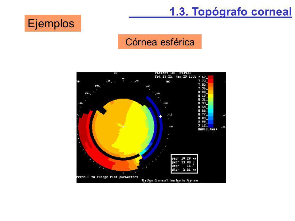 1.3. Topógrafo corneal Ejemplos Córnea esférica