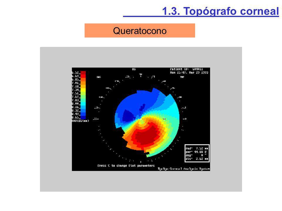 1.3. Topógrafo corneal Queratocono