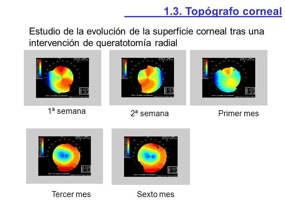 1.3. Topógrafo corneal Estudio de la evolución de la superficie corneal tras una intervención de queratotomía radial.