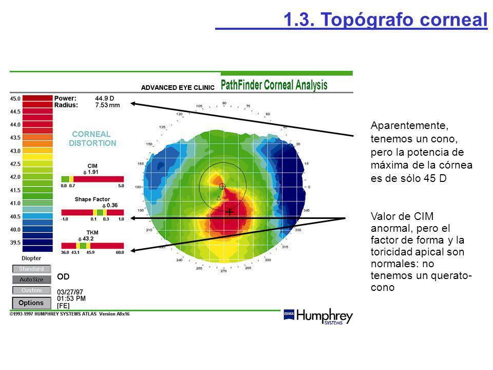1.3. Topógrafo corneal Aparentemente, tenemos un cono, pero la potencia de máxima de la córnea es de sólo 45 D.
