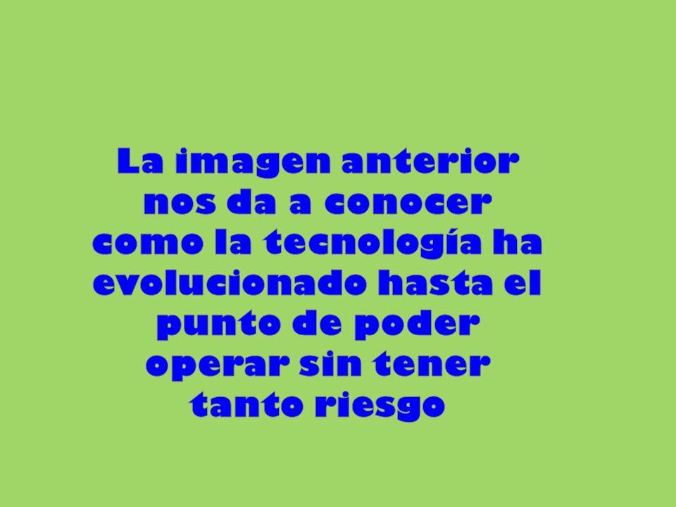 La imagen anterior nos da a conocer como la tecnología ha evolucionado hasta el punto de poder operar sin tener tanto riesgo