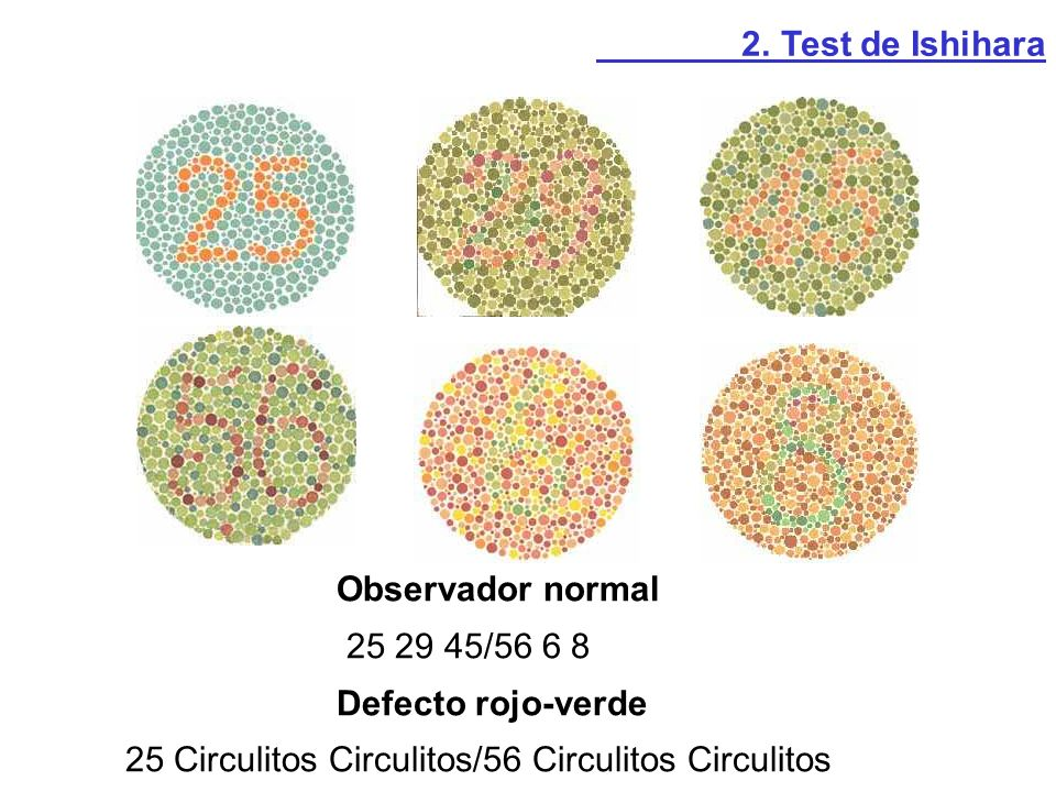 2. Test de Ishihara Observador normal. 25 29 45/56 6 8.