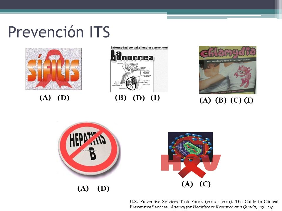 Prevención ITS (A) (D) (B) (D) (I) (A) (B) (C) (I) (A) (C) (A) (D)