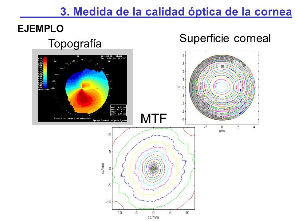 MTF Superficie corneal Topografía
