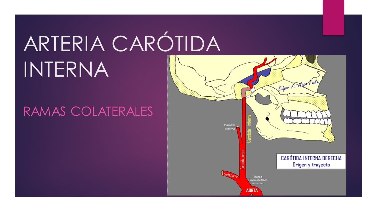 ARTERIA CARÓTIDA INTERNA - ppt video online descargar