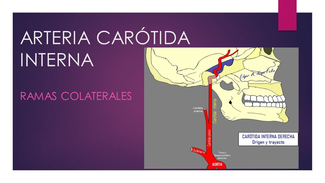 ARTERIA CARÓTIDA INTERNA - ppt video online descargar