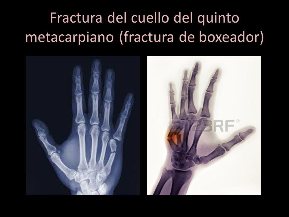 Perfecto Anatomía De Un Boxeador Molde - Anatomía de Las Imágenesdel ...