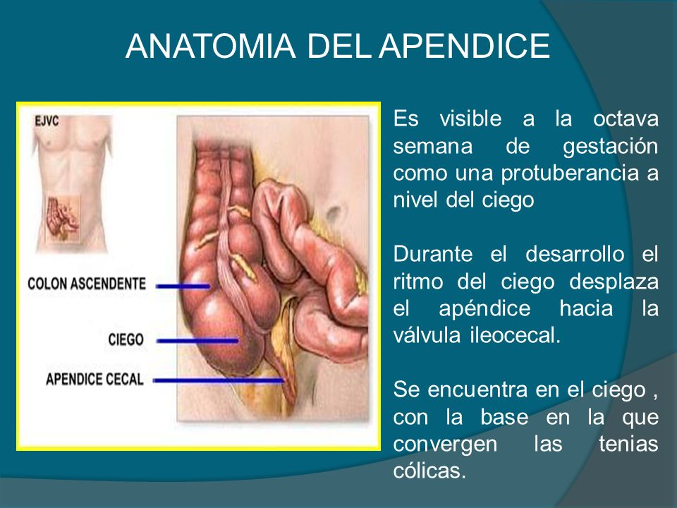 APENDICITIS. - ppt video online descargar