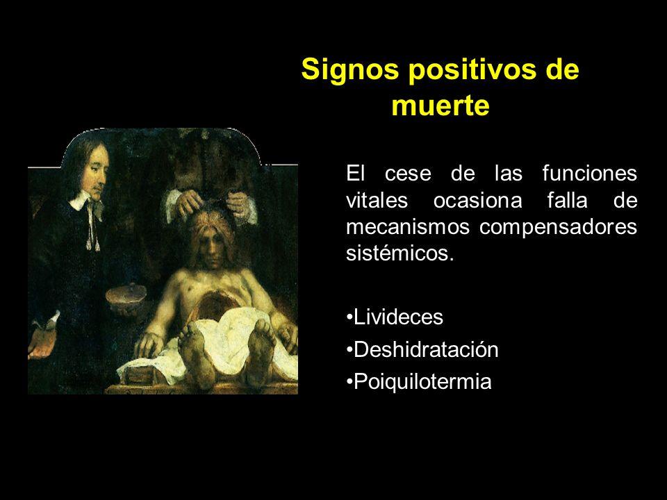 Signos positivos de muerte
