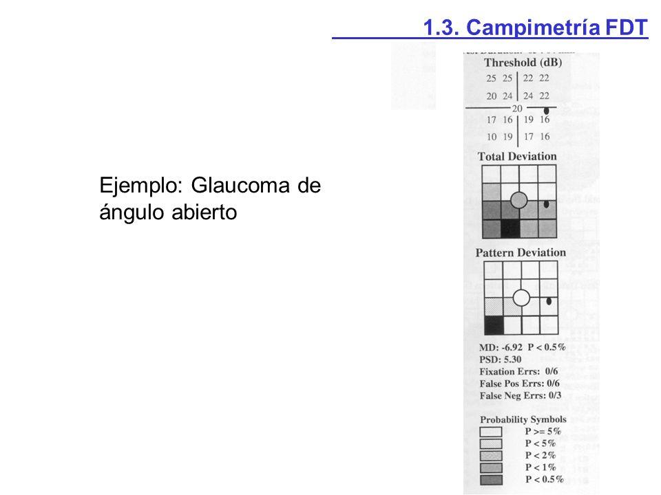 1.3. Campimetría FDT Ejemplo: Glaucoma de ángulo abierto