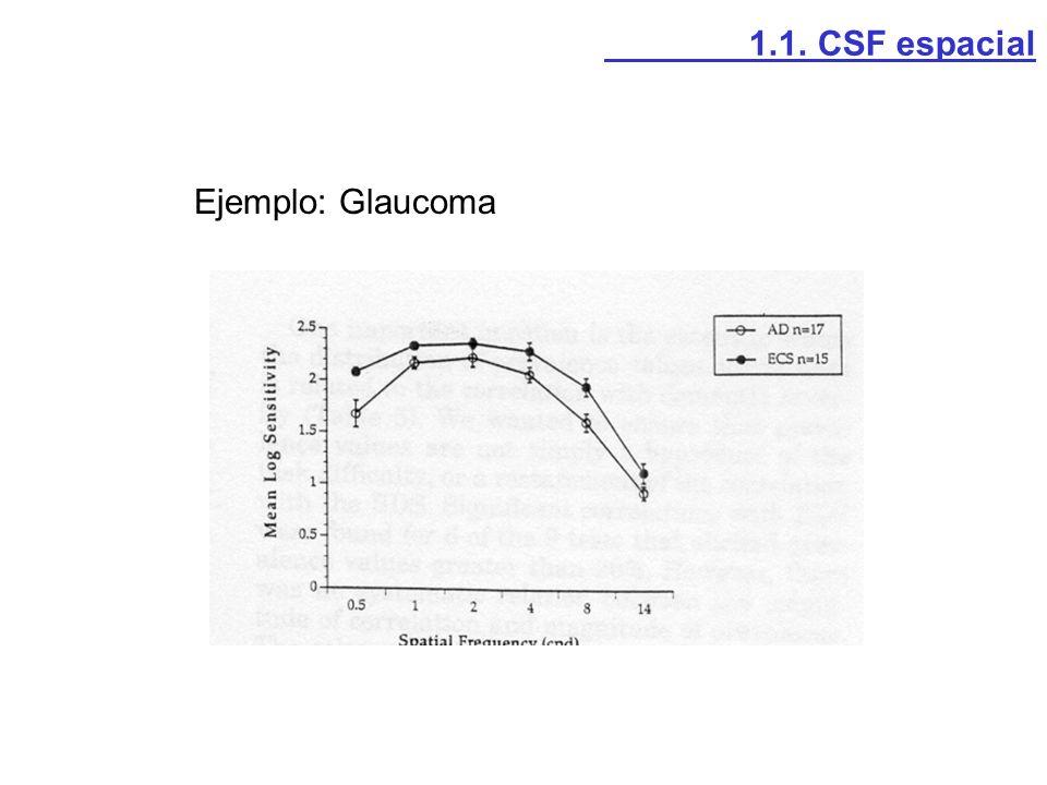 1.1. CSF espacial Ejemplo: Glaucoma