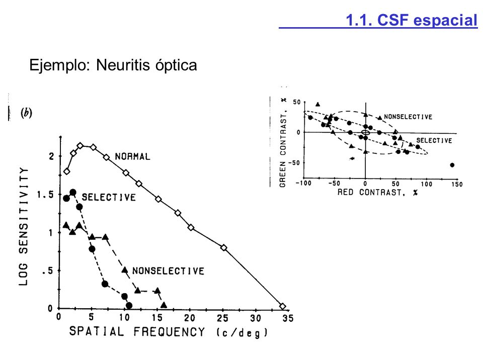 1.1. CSF espacial Ejemplo: Neuritis óptica