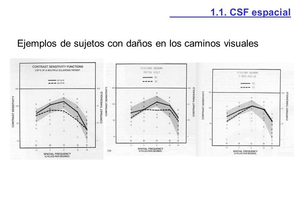 1.1. CSF espacial Ejemplos de sujetos con daños en los caminos visuales