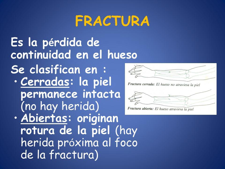 FRACTURA Se clasifican en :
