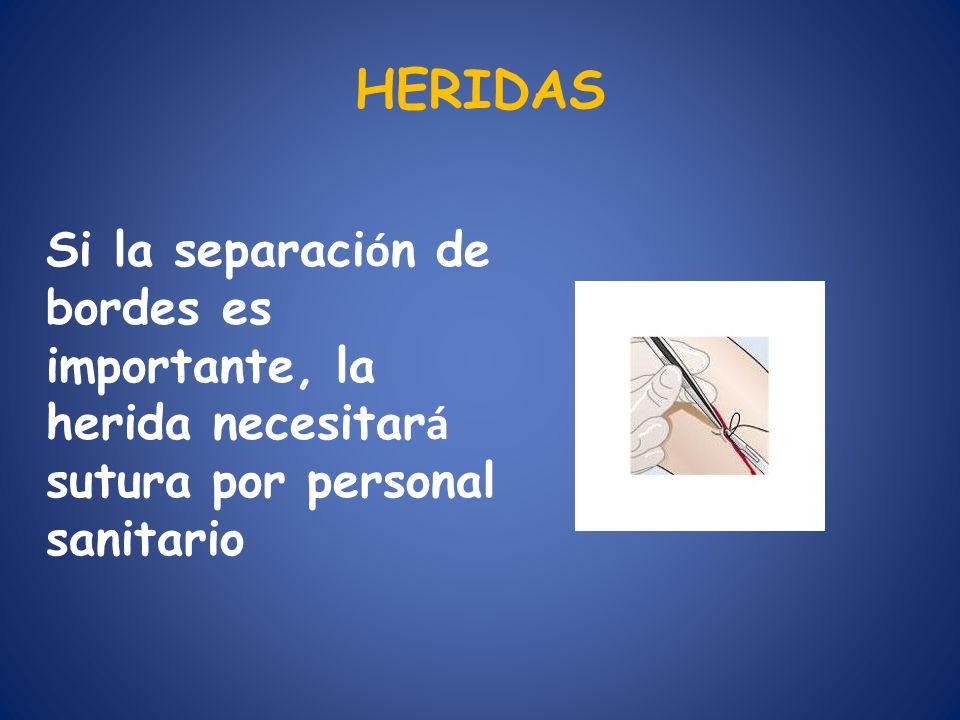 HERIDAS Si la separación de bordes es importante, la herida necesitará sutura por personal sanitario.